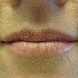 Before Lip Procedure