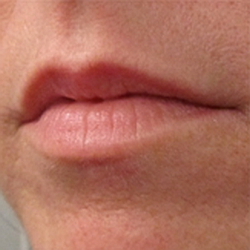 Before - Lips