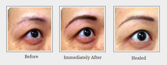Powdered eyebrow before immediately after healed for Eyebrow tattoo aftercare instructions