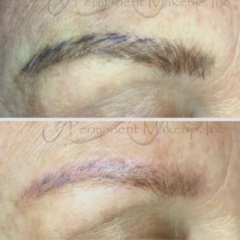 View examples of permanent make up : Lightening / Removal