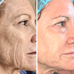 View examples of permanent make up : Microneedling