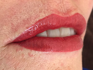 Lip Example - Sep16 - Lip Set 1 - After