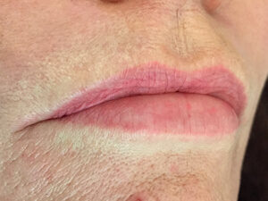 Lip Example - Sep16 - Lip Set 1 - Before