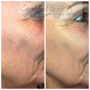Collagen Induction Therapy | Carolyn Elliott CPCP - Permanent Makeup